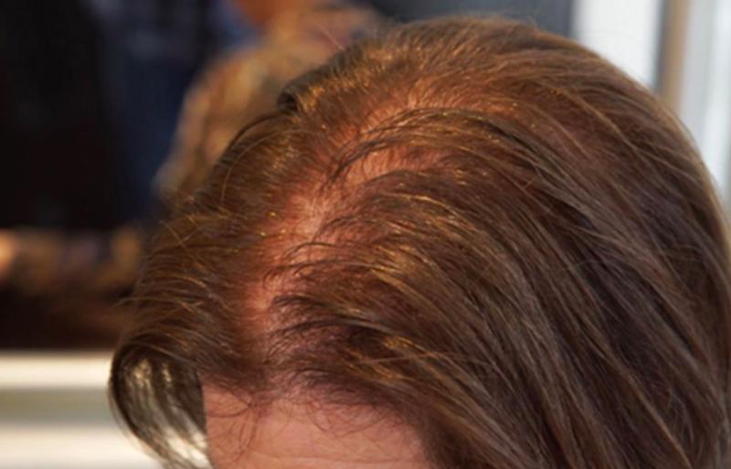 缺鐵性貧血-掉髮-禿頭