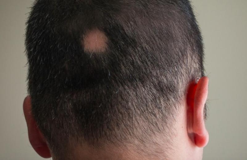 圓形禿-鬼剃頭-掉髮