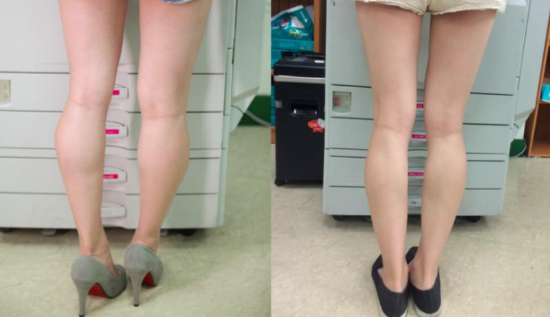 如何瘦小腿-健身-基因-肌肉-组成-