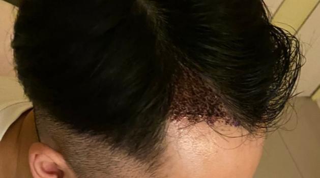 植髮手術-七天-一週-一個禮拜