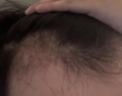 植髮-三個月-術後-過程-分享