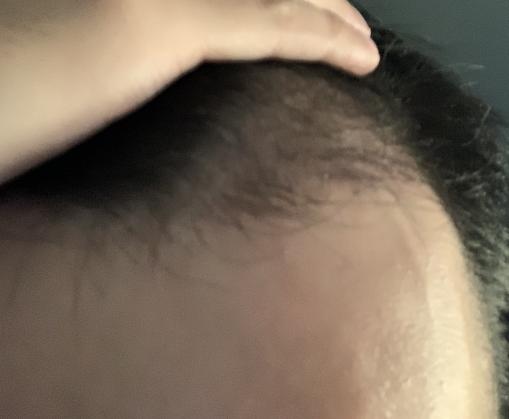 植髮-三個月-過程-經驗-歷程-分享