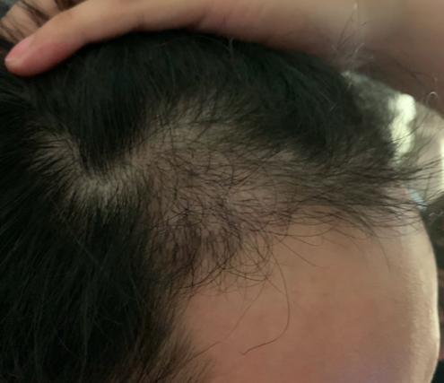 植髮-成果-四個月-4個月-右邊