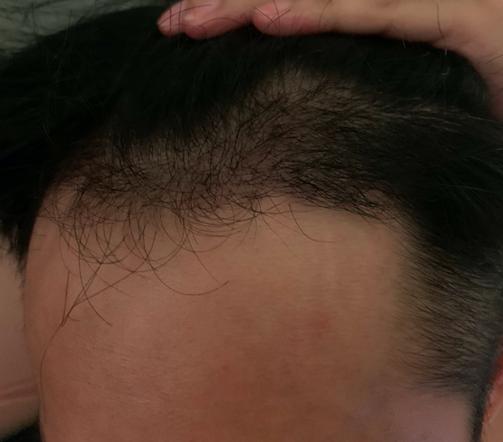 植髮-成果-四個月-4個月-左邊