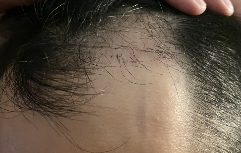 植髮-手術-一個月-右側
