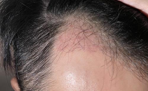植髮-手術-一個月-左側