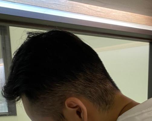 植髮-手術-一個月-後側