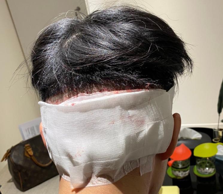 植髮-手術-當天-過程-經驗-歷程