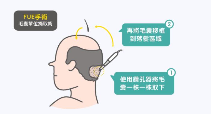 植髮-手術-過程-經驗-分享-成果
