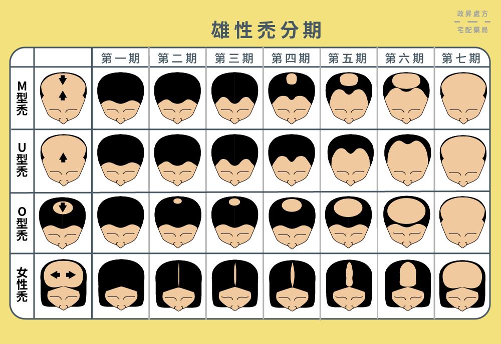 雄性禿-程度-種類-禿頭-分期