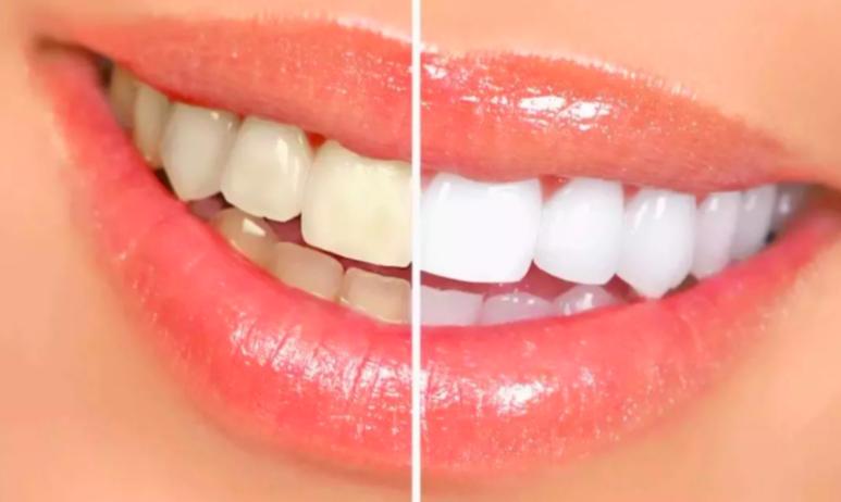 美白-牙齒-變白-方法-分享-教學-diy