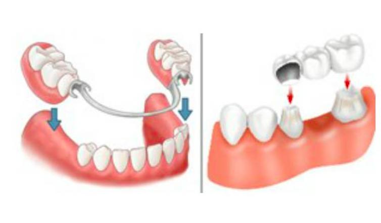 假牙種類-健康-口腔保健-蛀牙