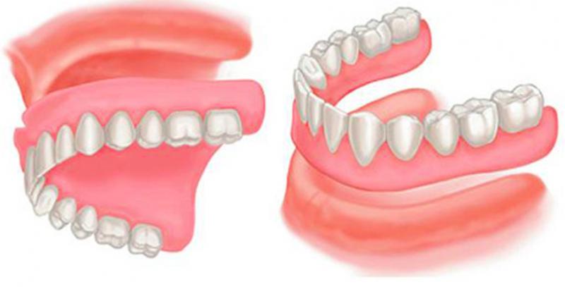 假牙-蛀牙-健康-知識